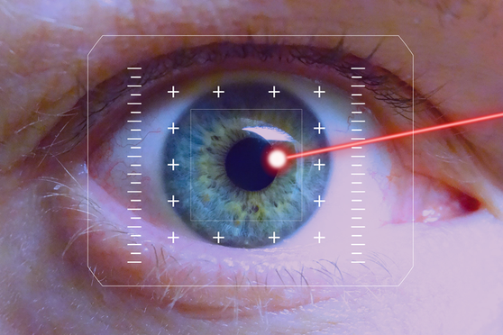 Picture showing laser surgery on the eye to treat Glaucoma