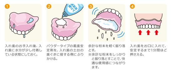 八戸市 歯医者 くぼた歯科医院 おすすめ 入れ歯 義歯 安定剤 おすすめ