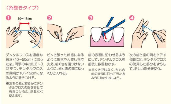 八戸市の歯医者 くぼた歯科医院 むし歯 予防 歯周病 ホワイトニング