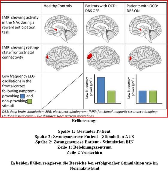 Wenn Therapie und Medimkamnete keinen ausreichen Erfolg der Zwangsstörung bringen, kann die THS in vielen Fällen, teil sselbstständig, teils  in Verbidnung , dafür sorgen das kognitive Verhaltenstherapie mit Reizexposition wieder funktionieren
