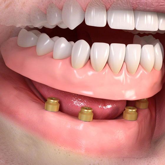 herausnehmbarer Zahnersatz auf 4 Implantaten