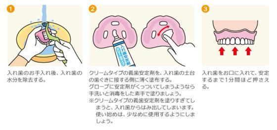 八戸市 歯医者 くぼた歯科 入れ歯 ノンクラスプ オススメ 安定剤