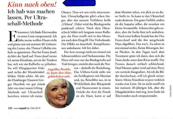 Ulthera Test, Ulthera Erfahrung, Dr. Huschek Erfahrung in Hamburg