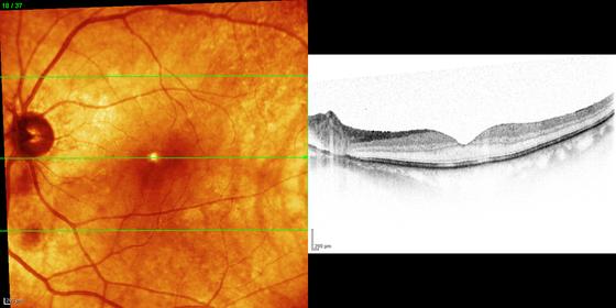Aufnahme: Dr. Norbert Papst mit Spectralis-OCT (Heidelberg Engineering)