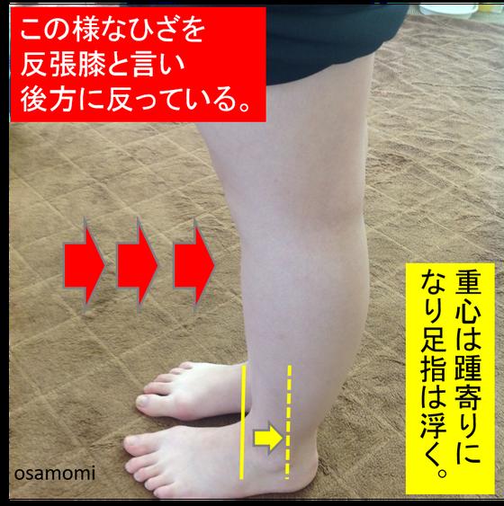 オサモミ整体院 浮き指 ひざ痛