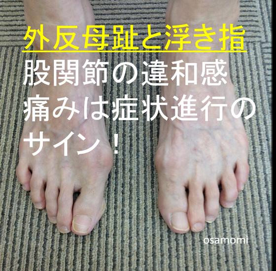 オサモミ整体院 外反母趾 浮き指