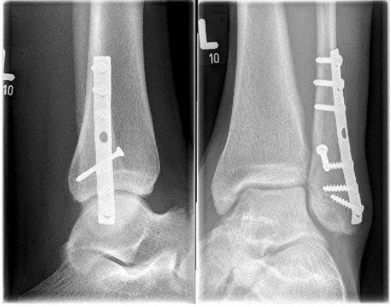 Weber B fracture