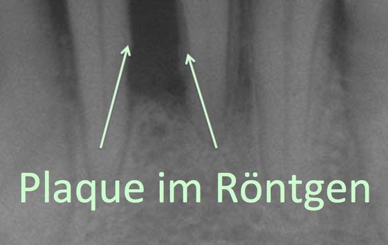 Röntgen Plaque