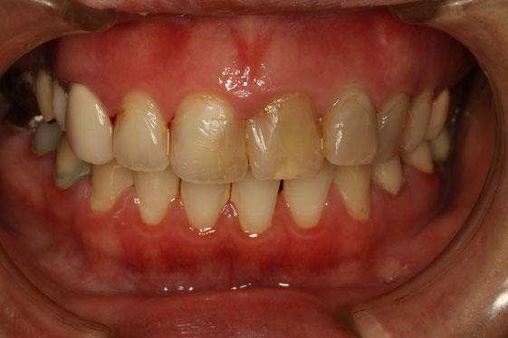 神経の無い歯