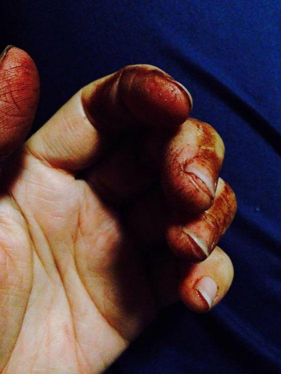 栗の渋皮煮の渋を手で取る作業後の手。染まった。
