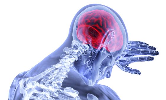 Mensch im Röntgenbild mit CMD craniomandibulärer Dysfunktion, Kieferschmerzen und Nacken schmerzen