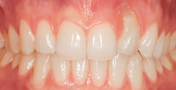freiliegender Zahnhals durch Zahnfleichrückgang