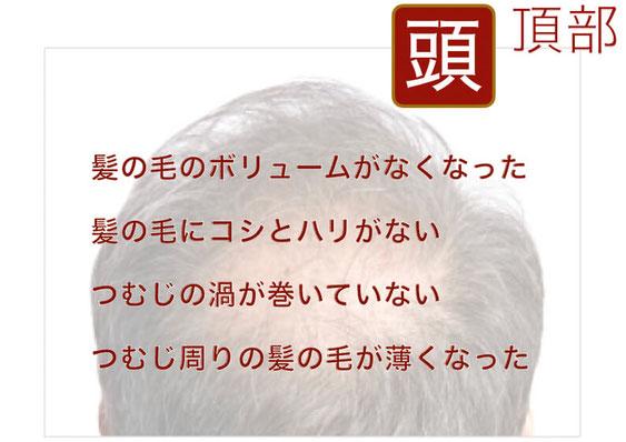 頭頂部の薄毛 鍼灸サロンAKARI