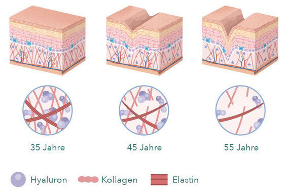 Hautalterung