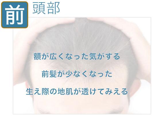 前頭部の薄毛 鍼灸サロンAKARI