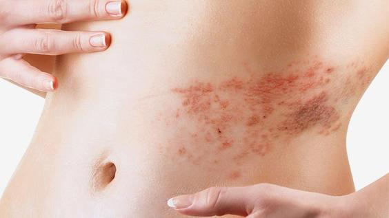 Gürtelrose beschreibt eine Viruserkrankung, die sich in Unwohlsein, Nervenschmerzen sowie einem juckenden Hautauschlag äussert. Die Ursachen können sowohl psychischer als auch körperlicher Natur sein, sind aber noch lange nicht geklärt