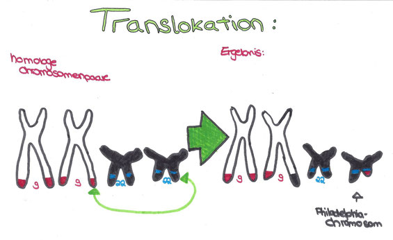 Abb. 2: Translokation bei Chromosomen