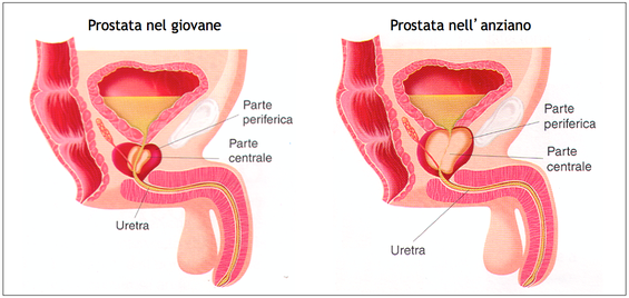 24 mm de adenoma de próstata