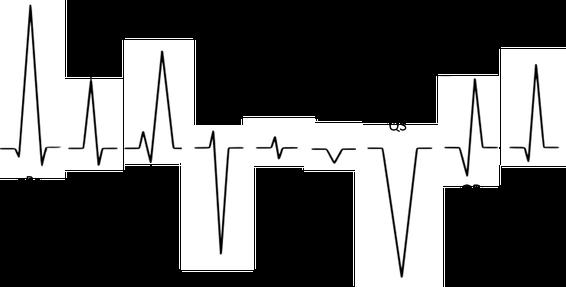 QRS-Komplex Nomenklatur