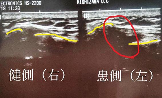 肩鎖関節脱臼のエコー画像