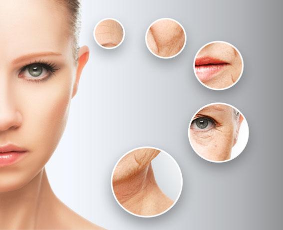 Abbildung der verschiedenen Gesichtsfalten mittels Microneedling oder Mesotherapie