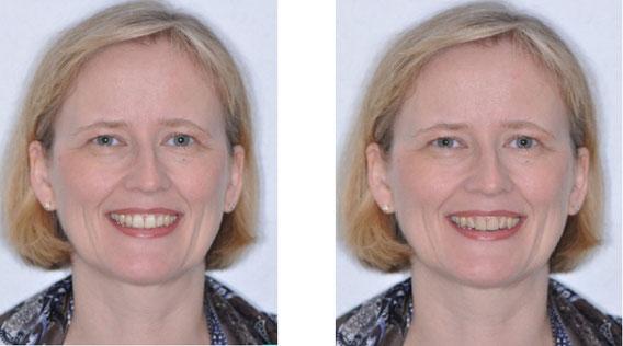 Die vom Programm vorgeschlagene Zahnform im Vergleich zur Natur.