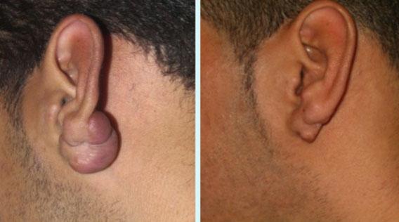 Verlaufsdokumentation Ohrkeloid, vor der Behandlung und sechs Jahre nachher (Fotos: Weidmann)