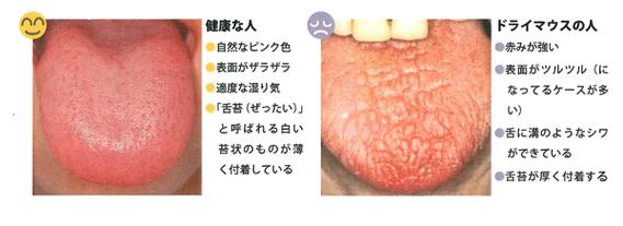 ドライマウス 口腔乾燥 八戸 歯医者 シェーグレン