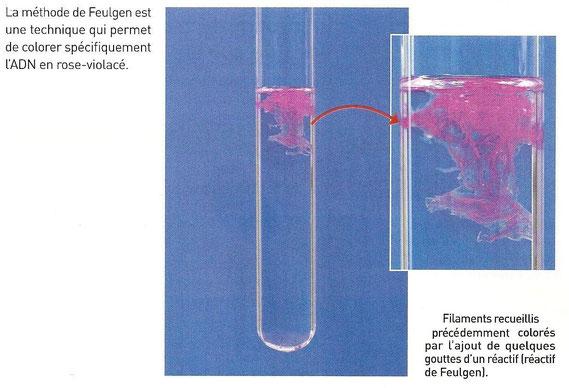 ADN obtenu après extraction d'une banane et coloré au Feulgen. Sources: http://jeanvilarsciences.free.fr/?page_id=422