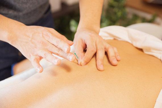 Akupunktur & TCM gegen Heunschnupfen: Therapiesitzung