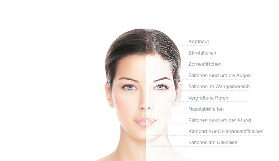 Mildes Microneedling mit dem Ziel der Haut Straffung, Falten mindern, Poren verkleinern, Hautbild verbessern, einen Glow zaubern