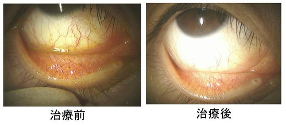点眼薬によるアレルギー