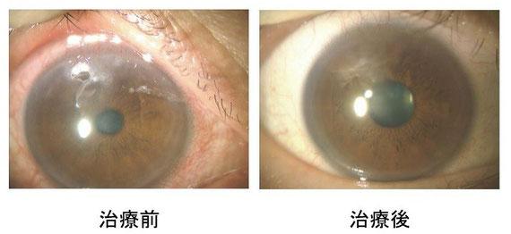 重症アレルギー性結膜炎である春季カタルの角膜潰瘍