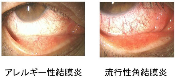 アレルギー性結膜炎と流行性角結膜炎