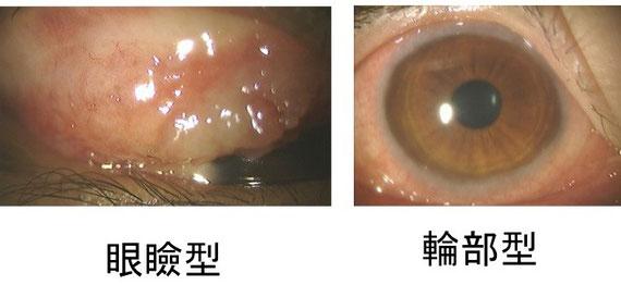 重症アレルギー性結膜炎の春季カタル