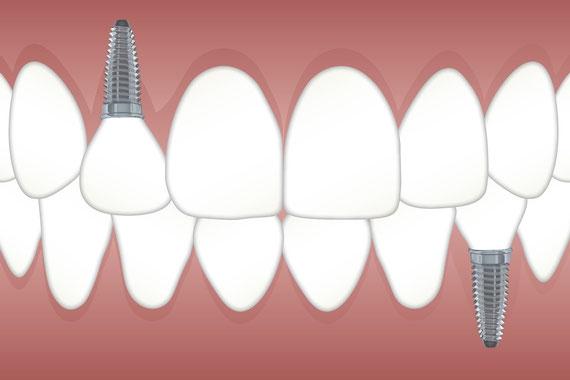 Zahn Implantat Krone