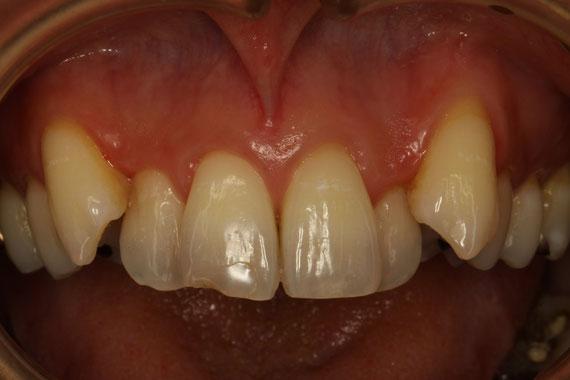 八重歯の歯茎が下がる