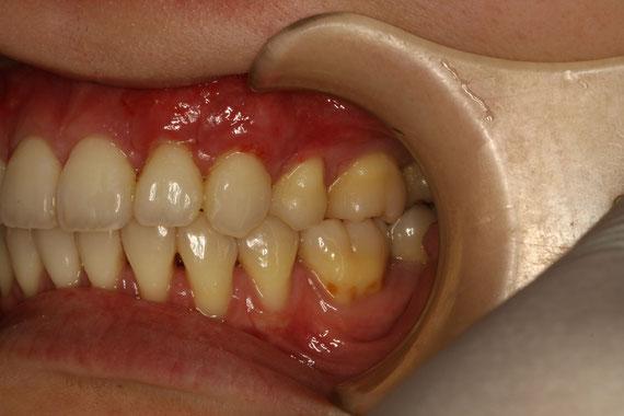 歯ぐきの再生後1週間