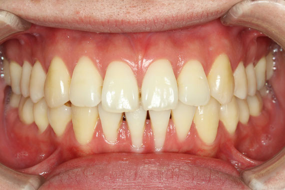 矯正後の歯茎退縮