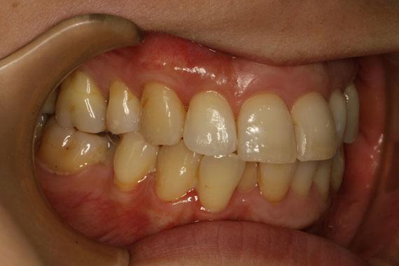 歯ぐき再生 アフター