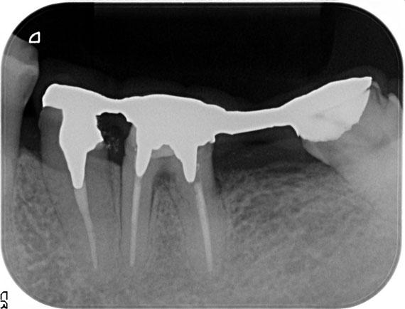 骨の再生後の状態