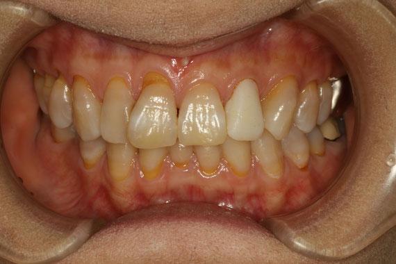 前歯1本の歯茎再生