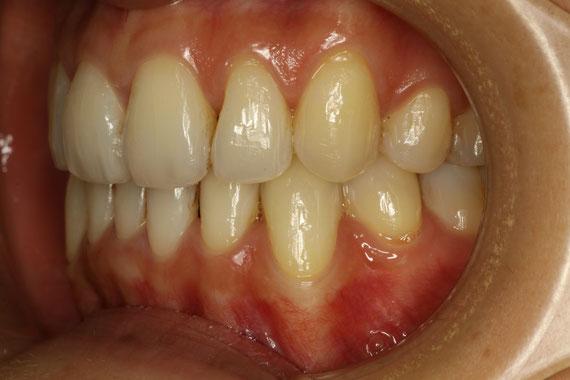 犬歯の歯茎の退縮