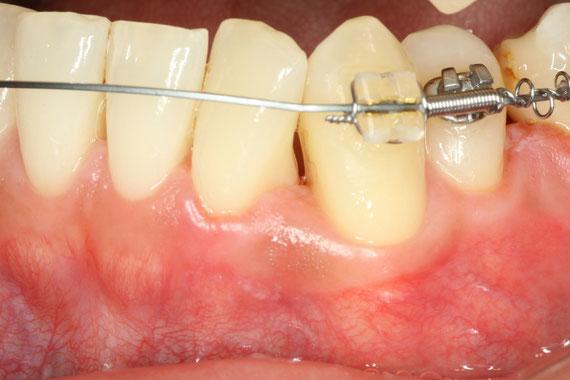矯正治療後の歯茎の退縮