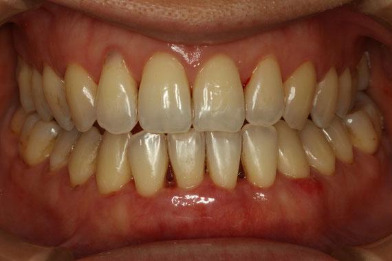 歯茎の再生2週間後