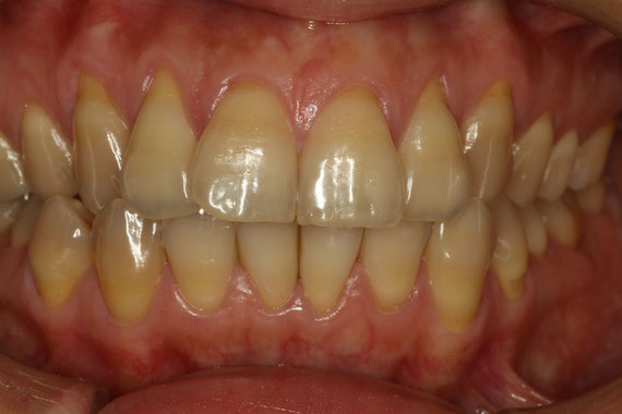歯並びと歯茎の退縮 治療前