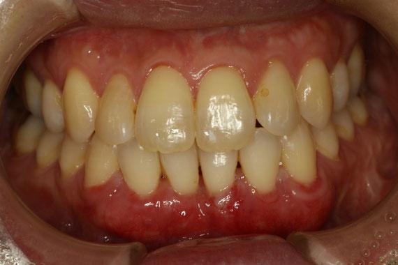 歯茎の再生 1週後の状態