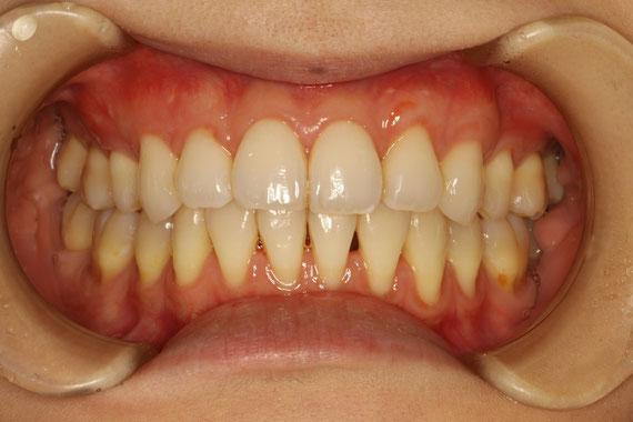 まずは上の歯の歯茎再生後