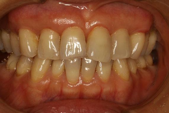 上の前歯6本の歯茎再生ケース。