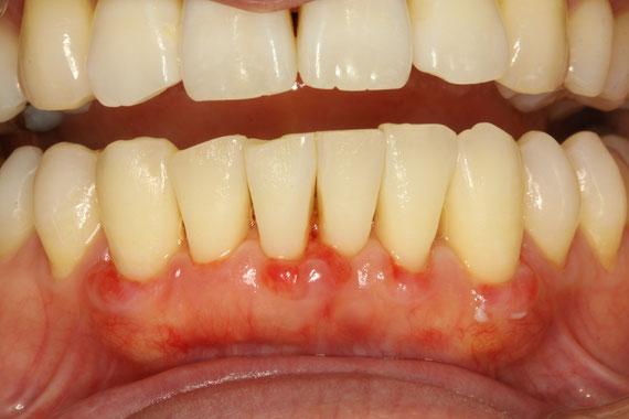 歯茎再生後の状態